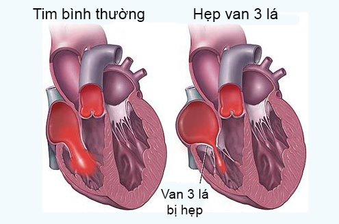Những điều cần biết về hẹp van 3 lá – Bệnh van tim hiếm gặp
